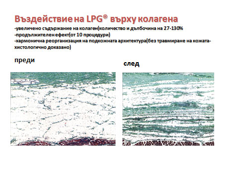 lpg-4